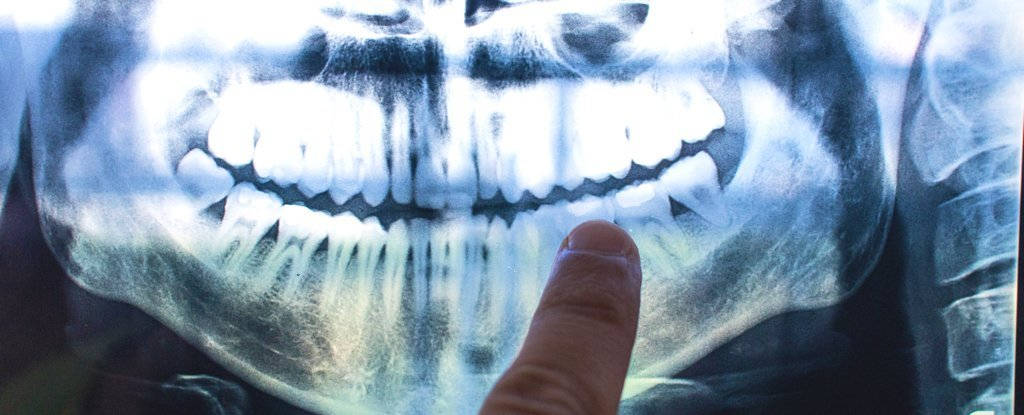 Life events can leave marks on the dental tissue. Like rings on wood!